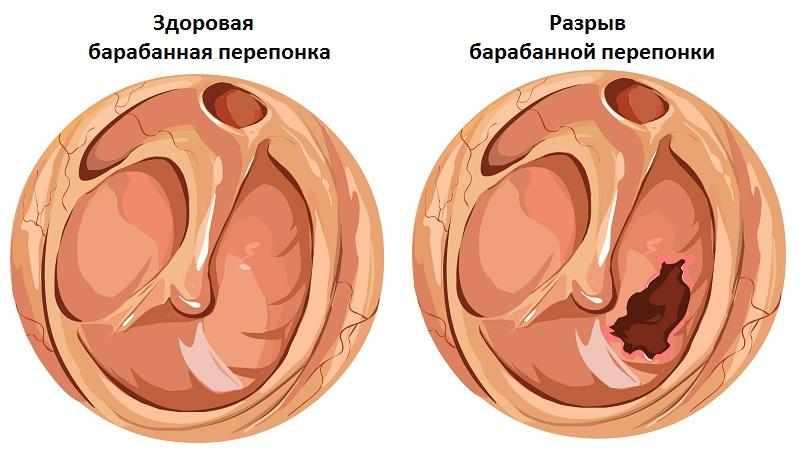 баротравма уха симптомы