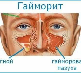 дексаметазон в нос отзывы