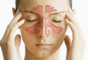 хронический гайморит симптомы и лечение у взрослых