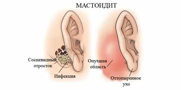 Что это если за ухом опухоль