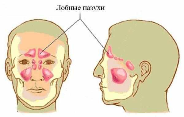 лобная пазуха болит-1