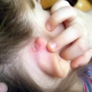 мокнет за ухом у взрослого
