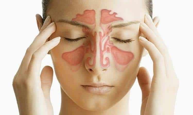 симптомы и лечение катарального гайморита