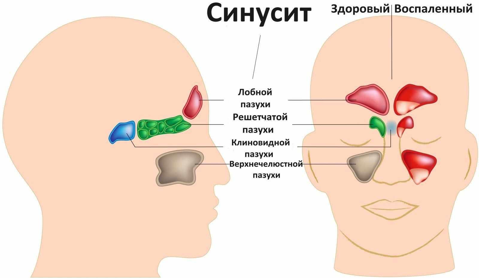 синусит и как его лечить