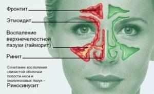 вазомоторная риносинусопатия