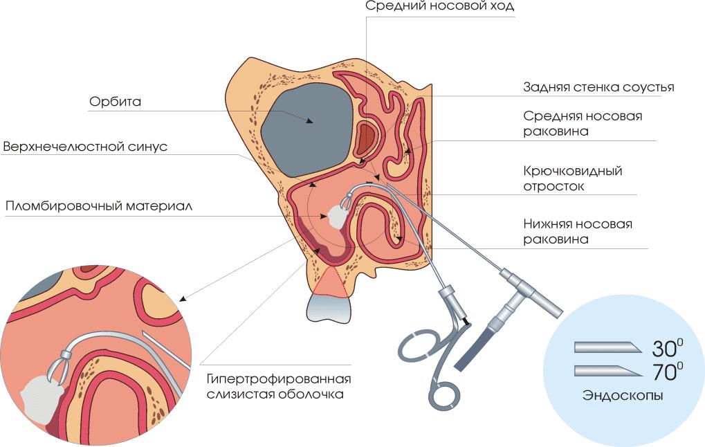 эндоскопическая операция на гайморовой пазухе видео