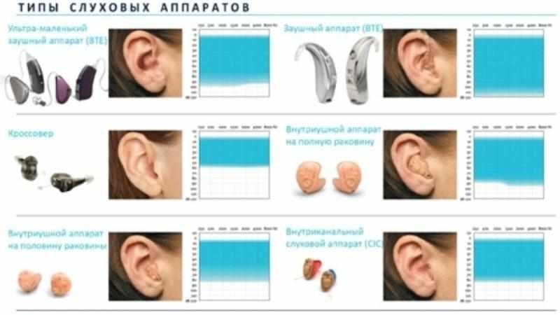 кому положен слуховой аппарат бесплатно