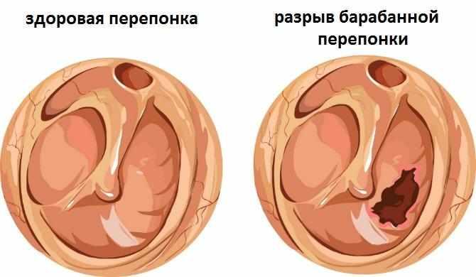 -травма уха ватной палочкой