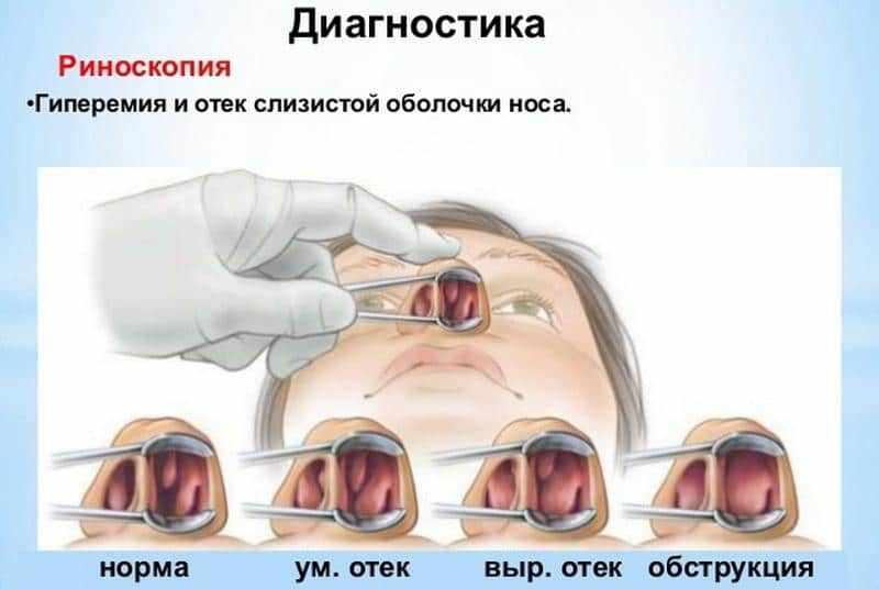 эндоскопическая риноскопия