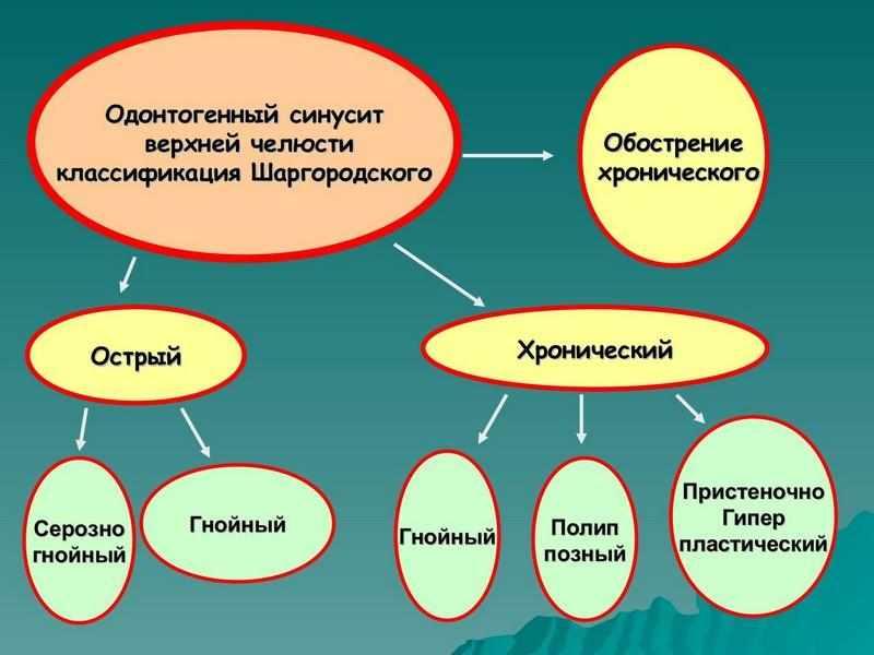 одонтогенный верхнечелюстной синусит