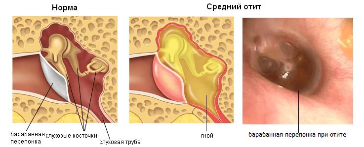 ципрофлоксацин инструкция по применению капли ушные