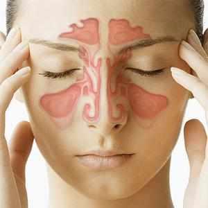 -антибиотики при синуситах у взрослых
