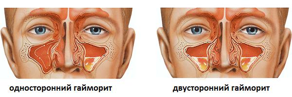 Bolit-gaymorova-pazukha-2