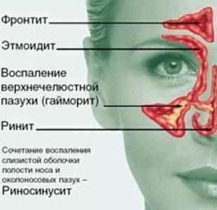 капли в нос аквамарис для новорожденных