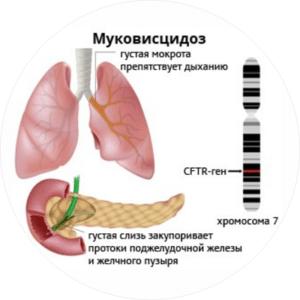 симптомы и лечение муковисцидоза у детей