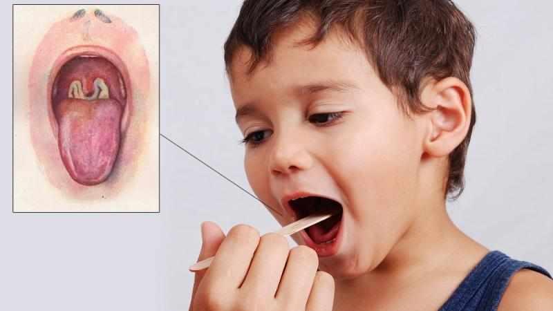 Как лечить гнойную ангину у детей