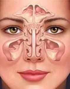 риносинусопатия головного мозга что это такое
