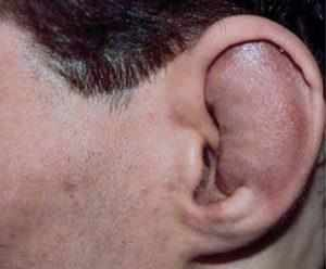 первые признаки сломанного уха