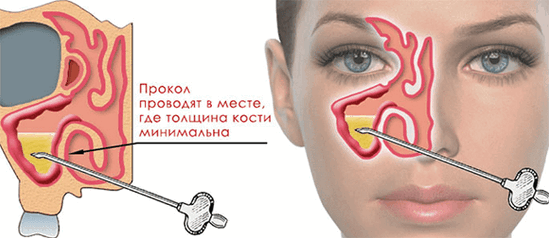 симптомы и лечение одностороннего гайморита
