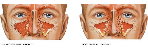 синусит симптомы и лечение