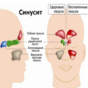 лекарства от синусита