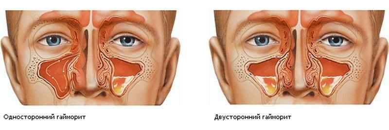 назальные спреи от гайморита для носа