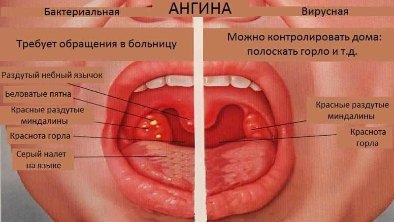 Какие бывают заболевания горла
