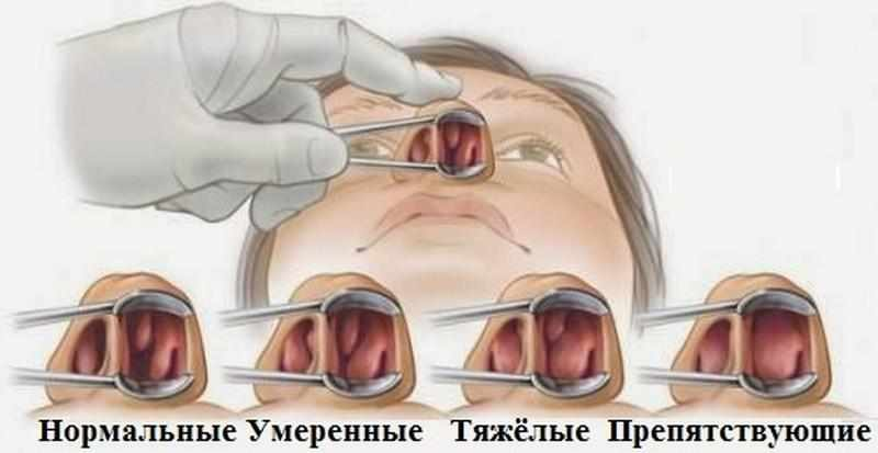 можно удалить полипы в носу лазером