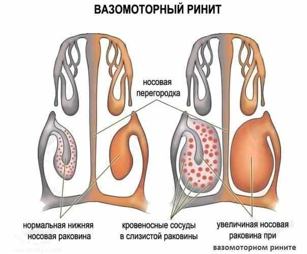 лечение вазомоторного ринита препаратами