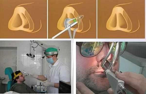 лазерная коррекция носовой перегородки