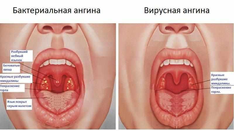 Как лечить острый тонзиллит