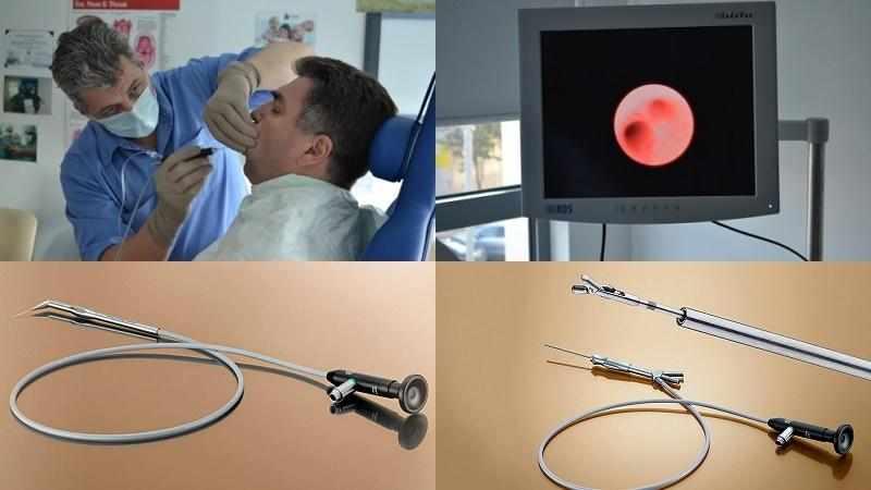 сиалоаденит околоушной слюнной железы лечение
