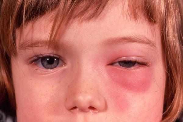 осложнения после гайморита