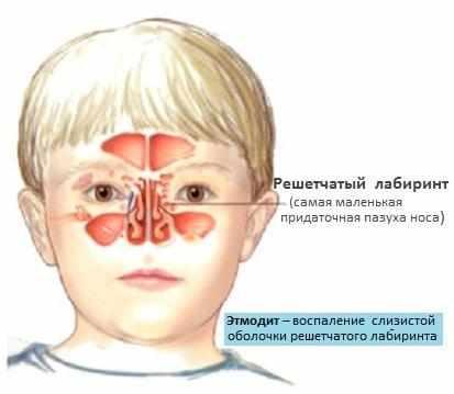 катаральный этмоидит лечение в домашних условиях