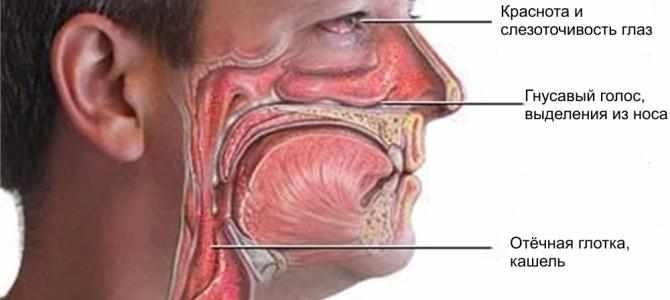заболевание ринофарингит