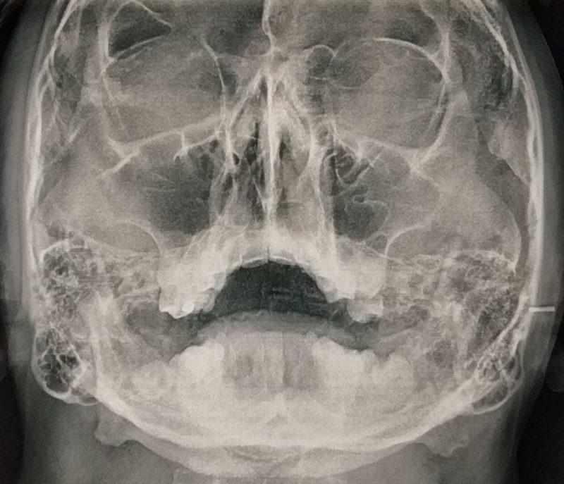 Рентген предаточных пазух носа в прямой проекции