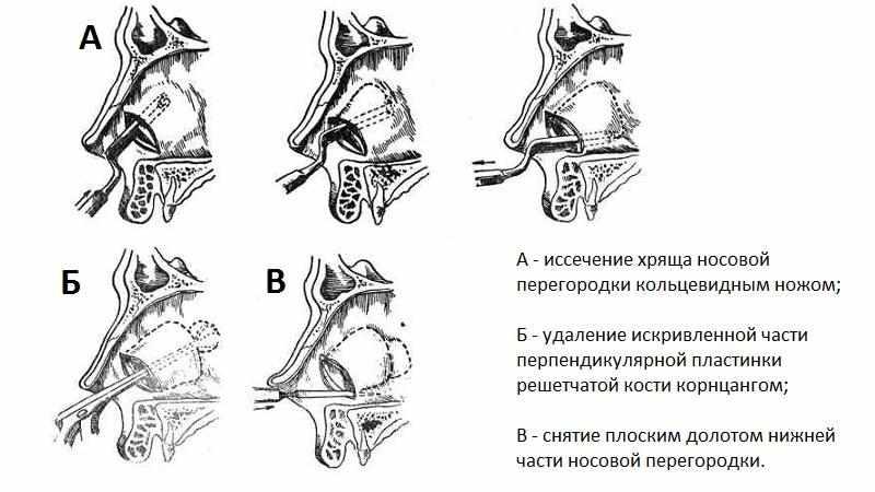 резекция слизистой носа