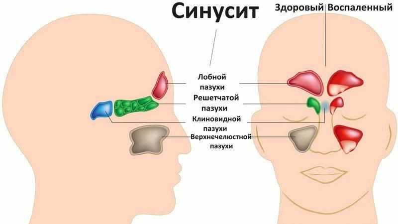 Как лечить кашель от синусита?