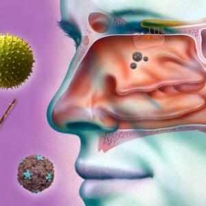 симптомы и лечение полипозного риносинусита
