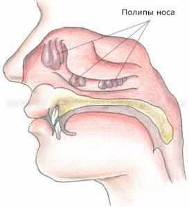полипоз носа что это такое