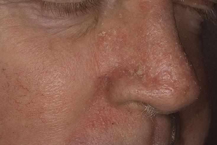 -противогрибковые препараты для носа