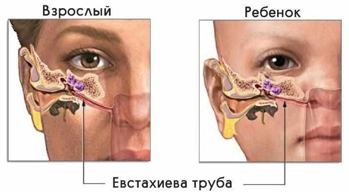 боль в ухе у ребенка комаровский