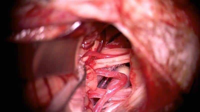 как лечить спайки в носу после операции
