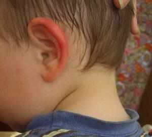 у ребенка опухло ухо и покраснело