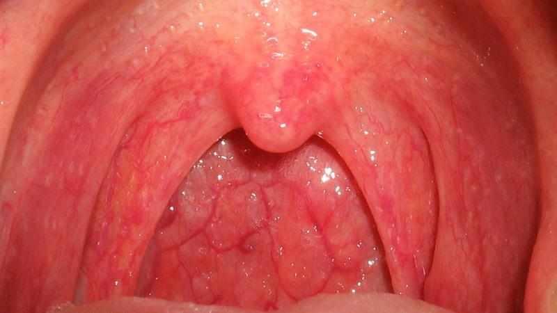 Как лечить катаральную ангину у детей