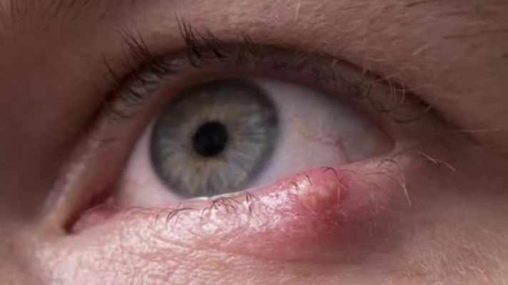 Чем и как лечить ячмень на глазу