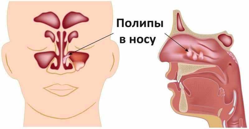 кистозно полипозный гайморит