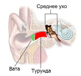 гнойные выделения из уха