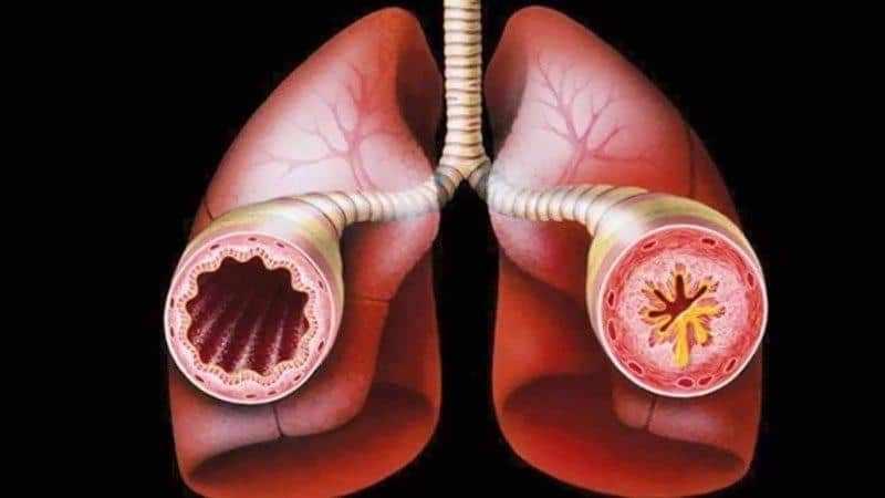 что делать если кашель и болят бронхи