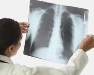 Может ли быть пневмония без кашля?